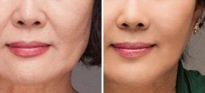 Rich Skin - nedir - ne işe yarar - nasıl kullanılır - uygulanır